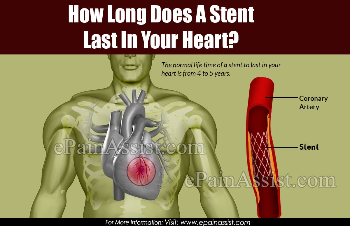 How Long Does A Stent Last In Your Heart?