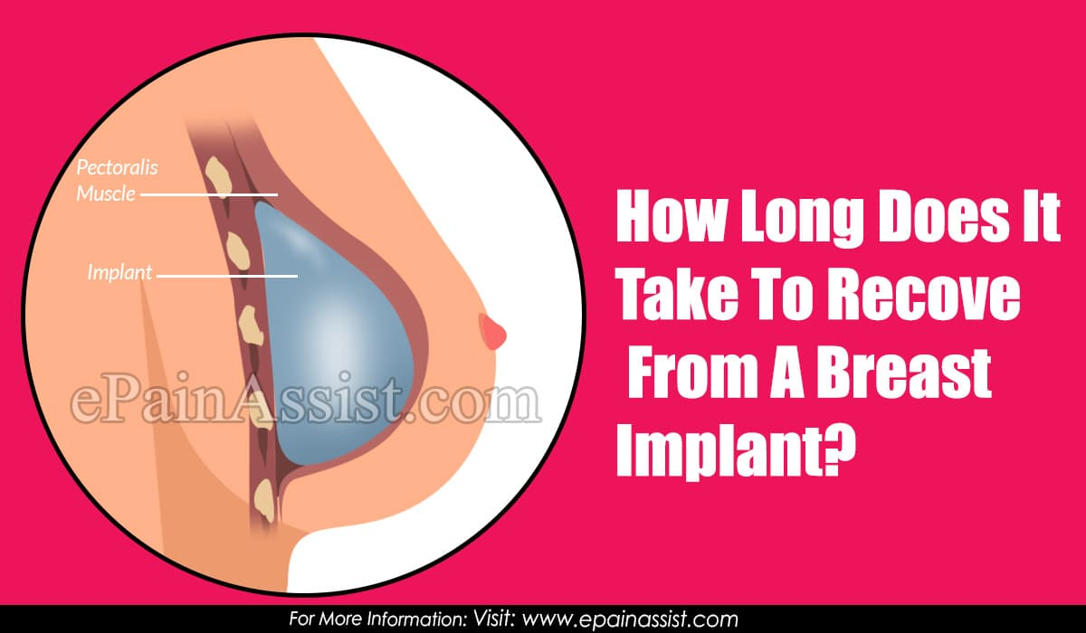 How Long Does It Take To Recover From A Breast Implant