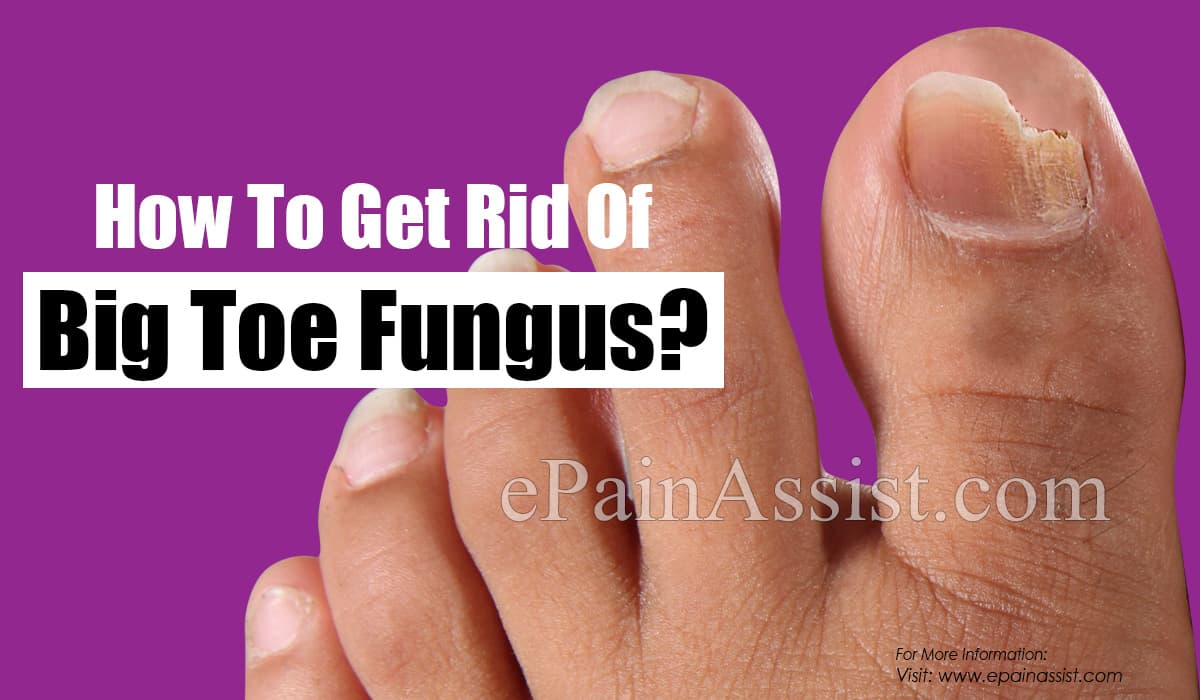 How To Get Rid Of Big Toe Fungus?