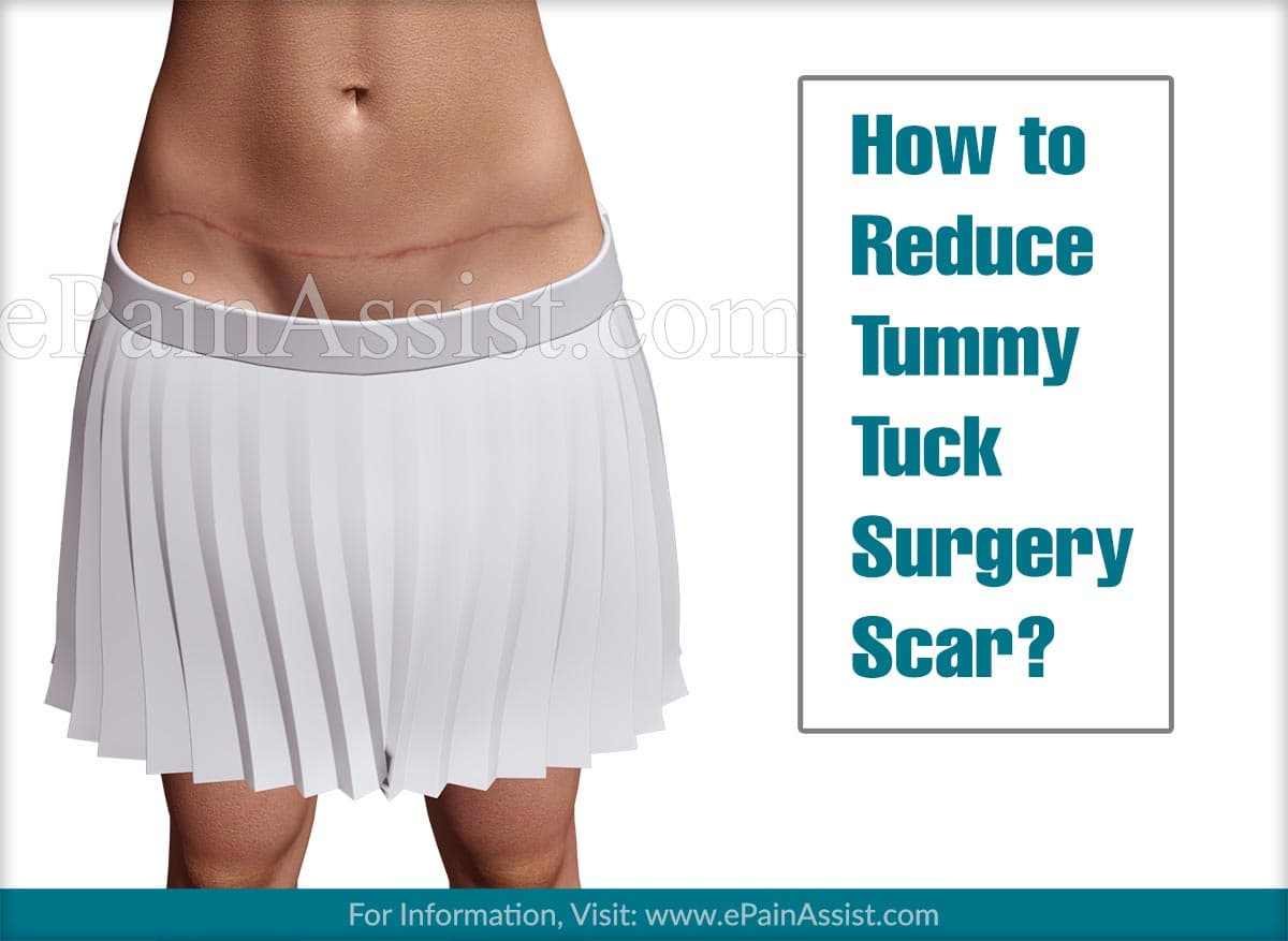 How to Reduce Tummy Tuck Surgery Scar?