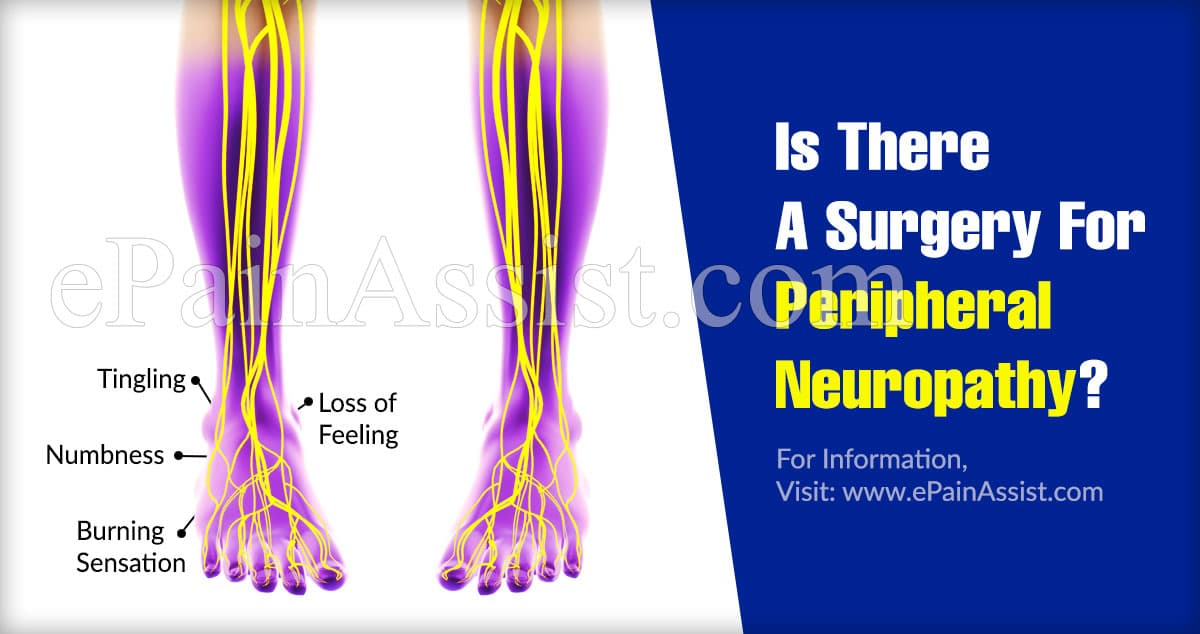 Is There A Surgery For Peripheral Neuropathy?