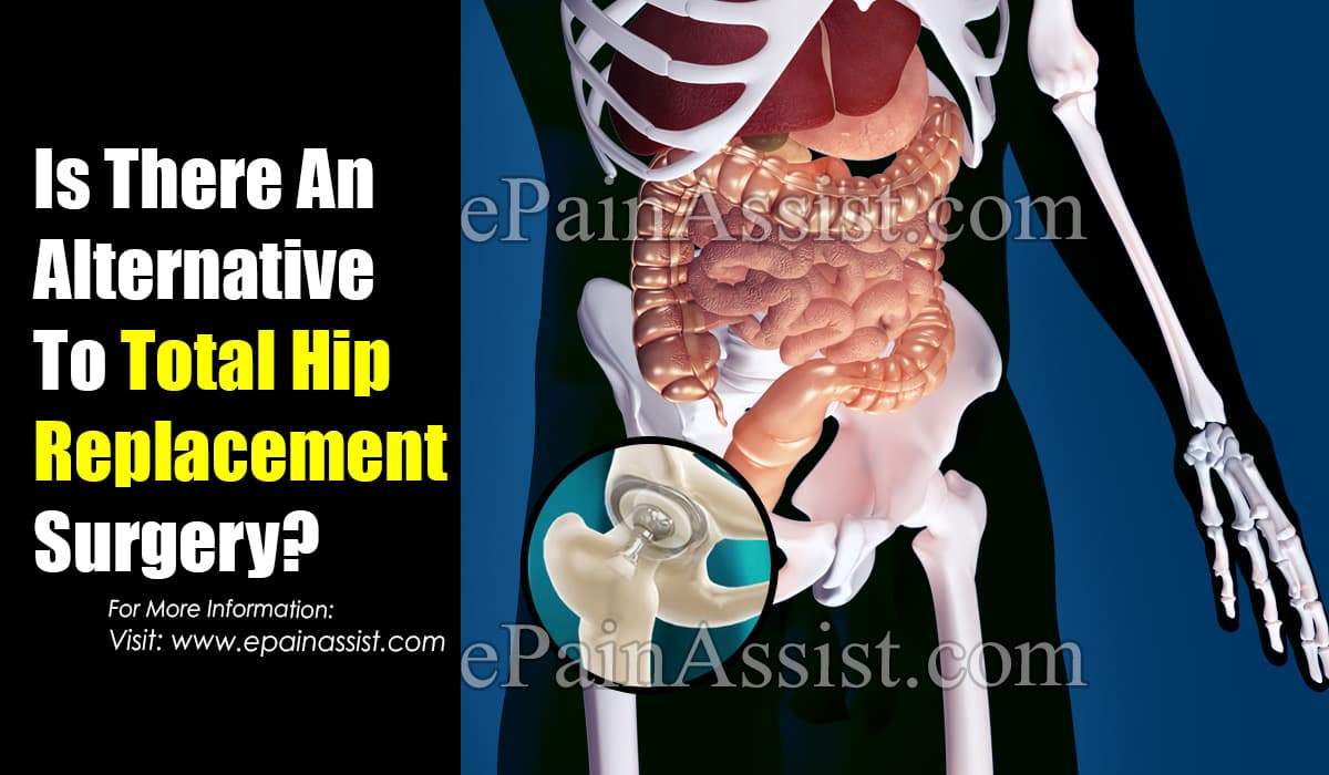 Is There An Alternative To Total Hip Replacement Surgery?