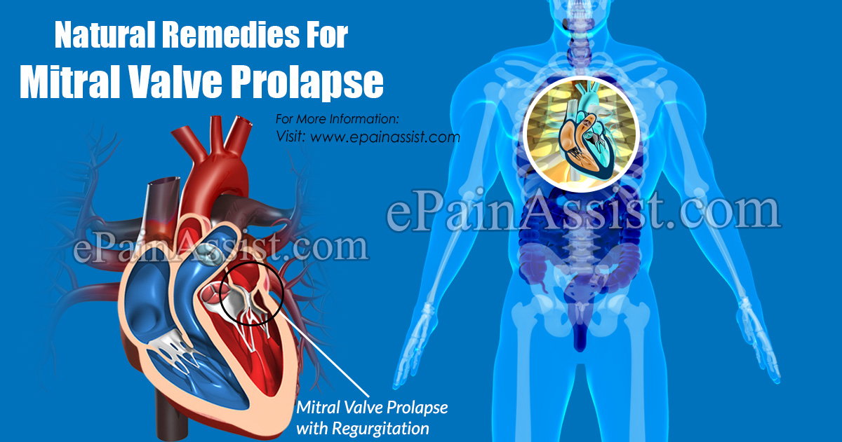 Natural Remedies For Mitral Valve Prolapse