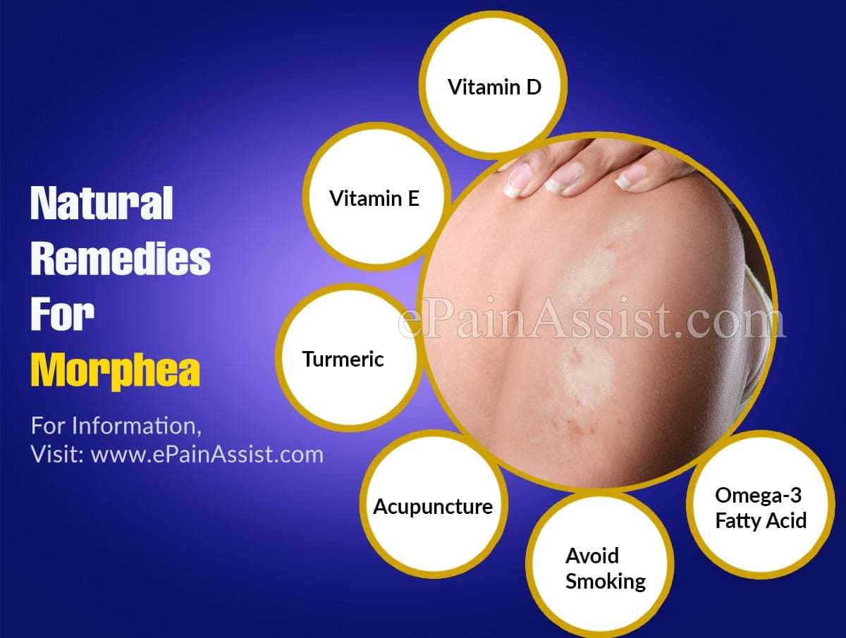Natural Remedies For Morphea