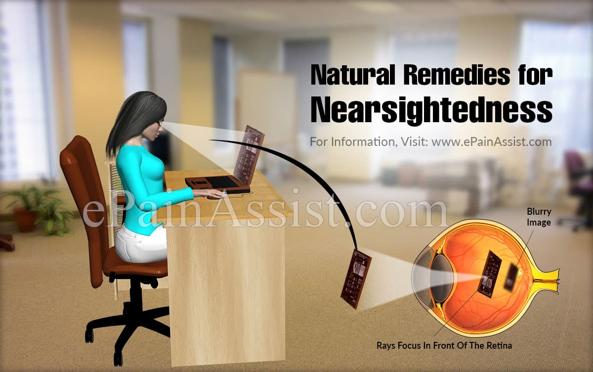 Natural Remedies for Nearsightedness