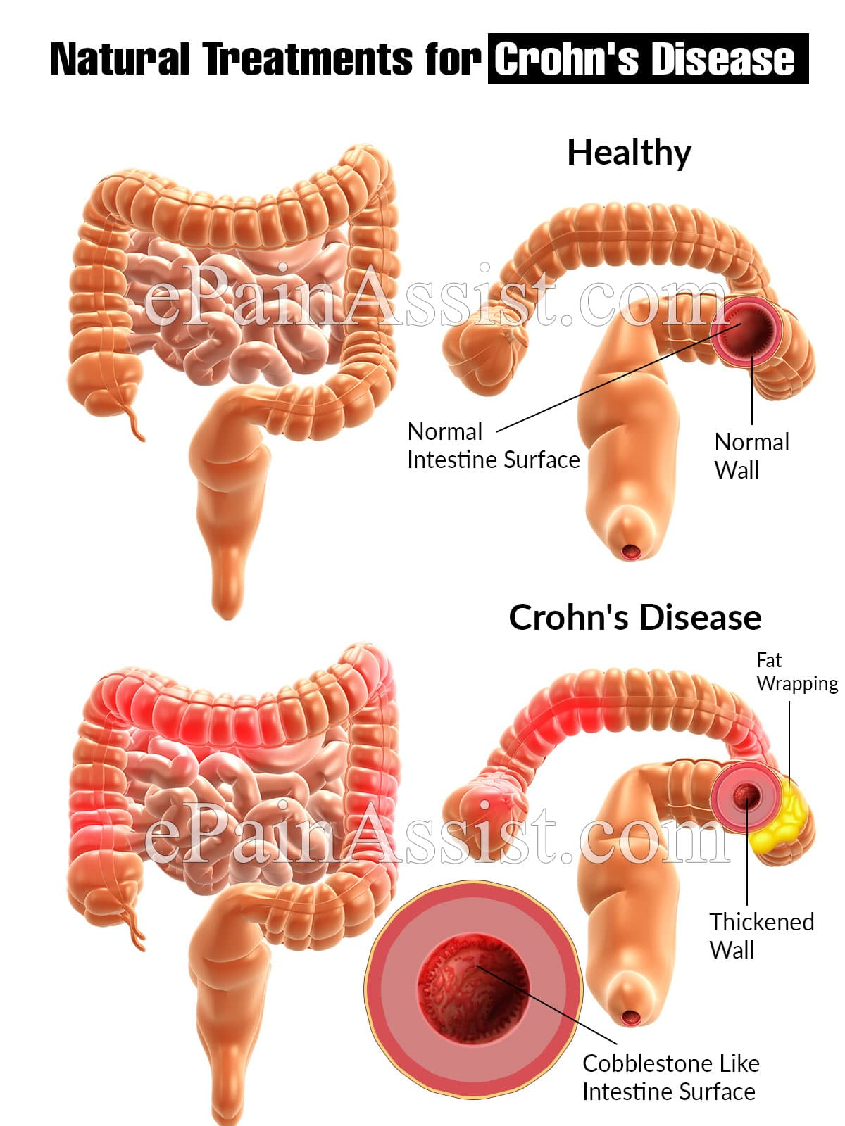 Natural Treatments for Crohn's Disease