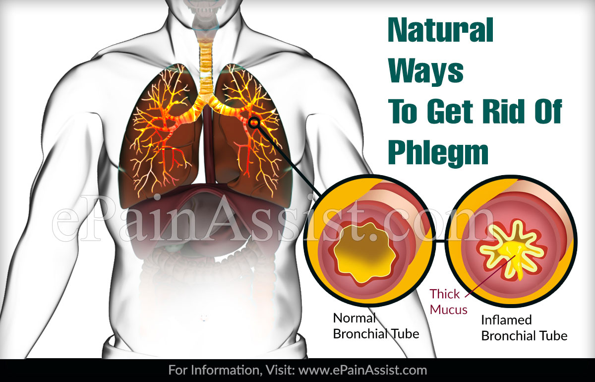 Natural Ways To Get Rid Of Phlegm
