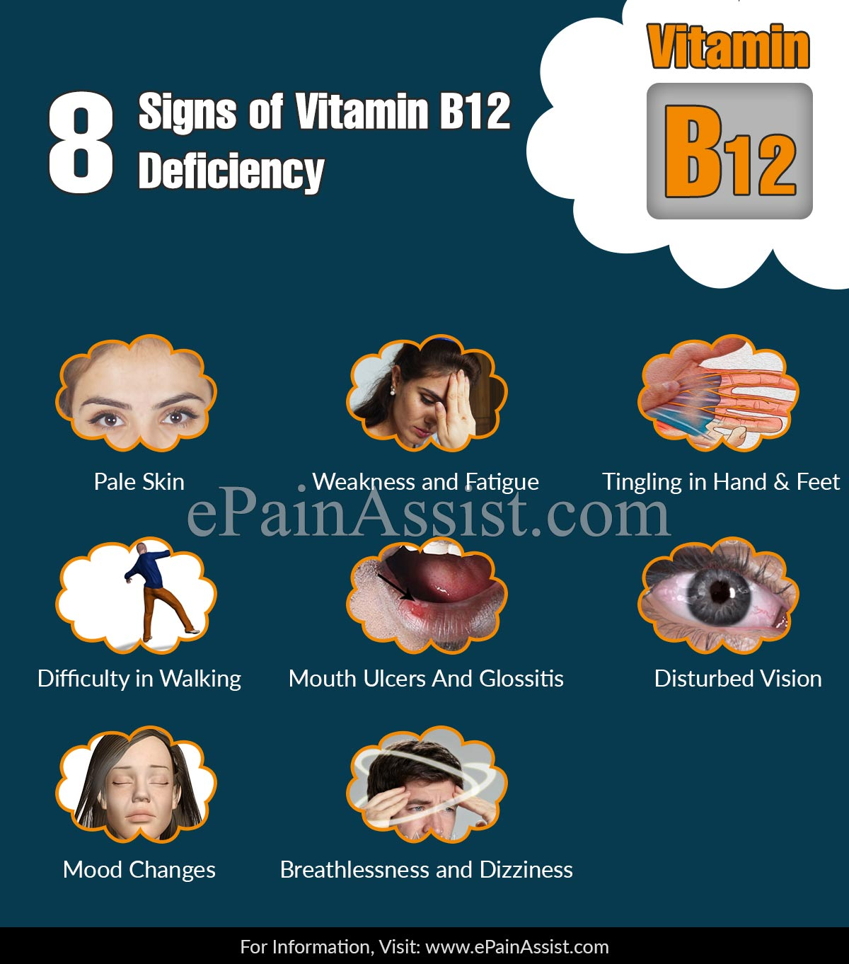 8 Signs of Vitamin B12 Deficiency