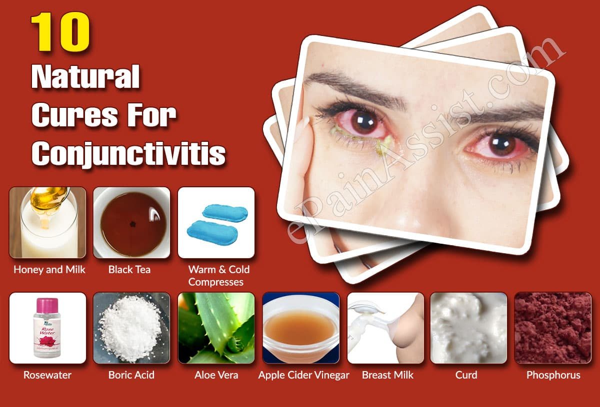 Top 10 Natural Cures For Conjunctivitis