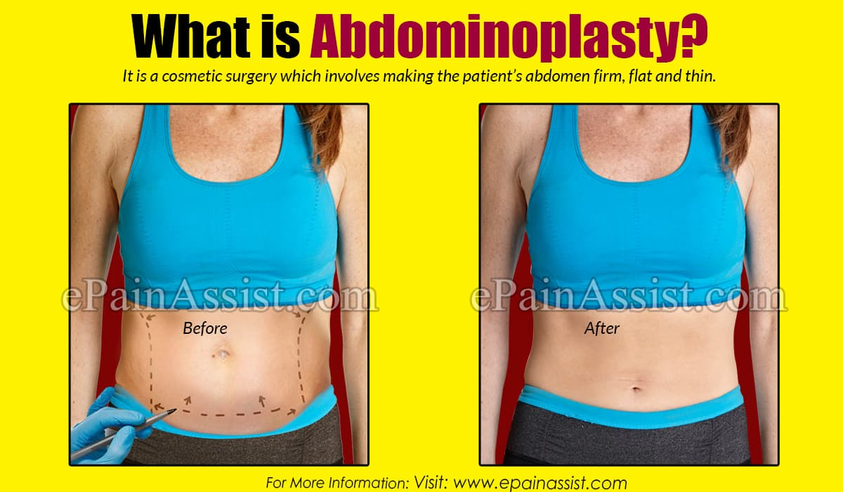 What is Abdominoplasty?