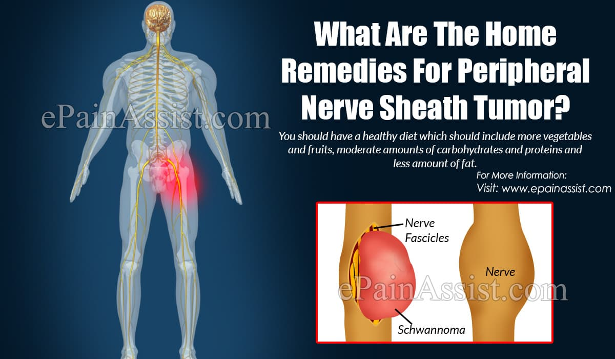 What Are The Home Remedies For Peripheral Nerve Sheath Tumor?
