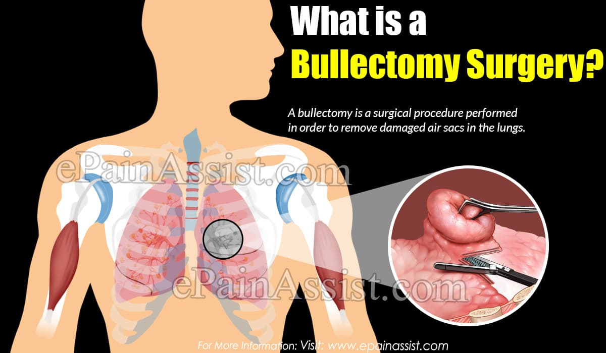 What is a Bullectomy Surgery?