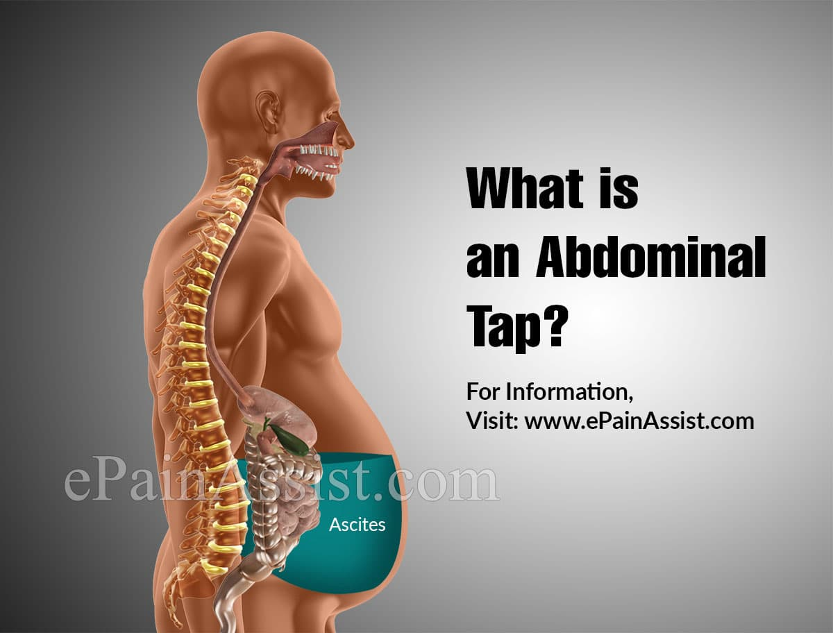What is an Abdominal Tap?
