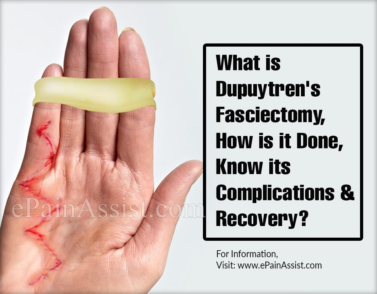 What is Dupuytren's Fasciectomy, How is it Done, Know its Complications and Recovery?