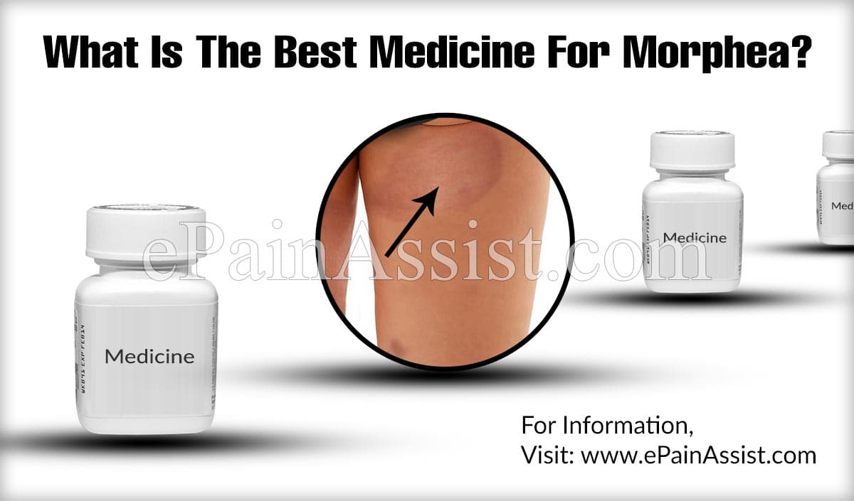 What Is The Best Medicine For Morphea?