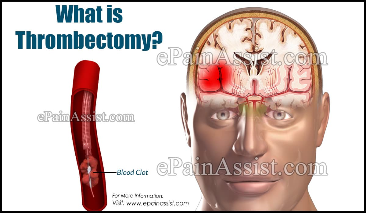 What is Thrombectomy?