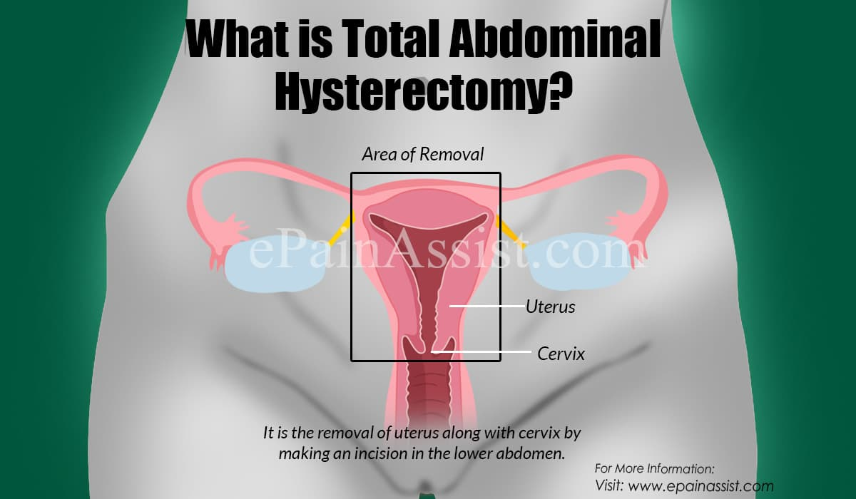 What is Total Abdominal Hysterectomy?