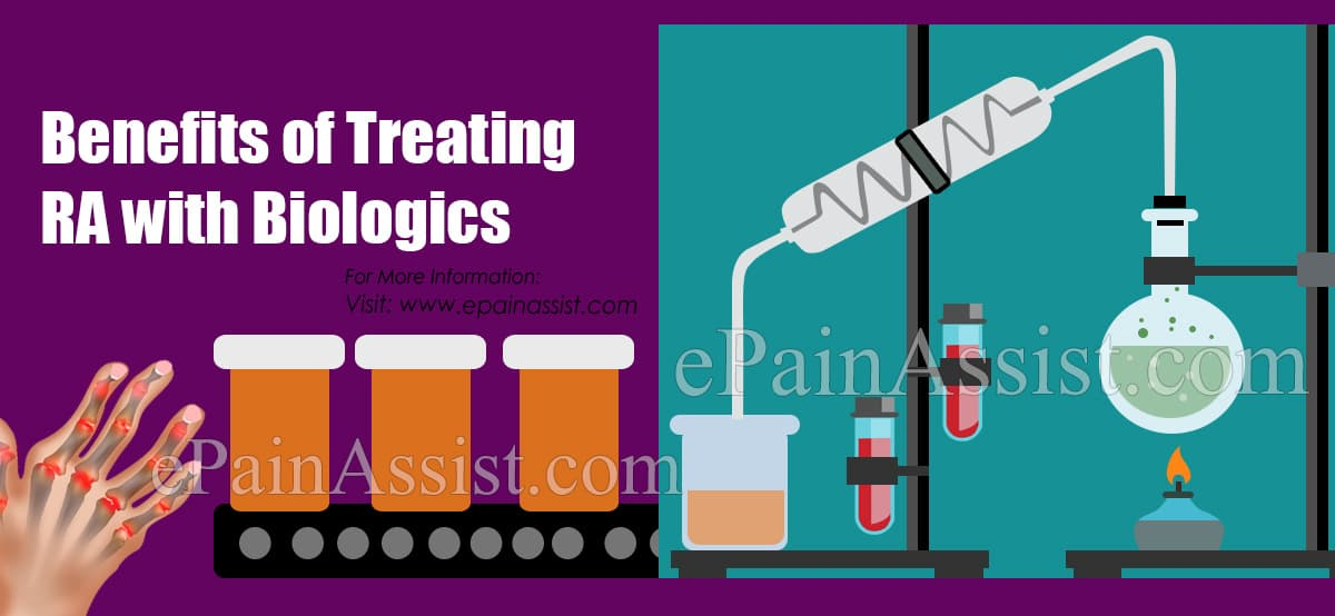 Benefits of Treating RA with Biologics