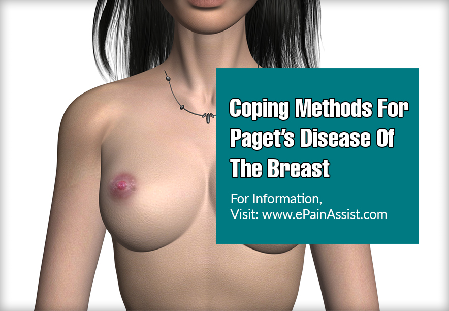 Coping Methods For Paget's Disease Of The Breast