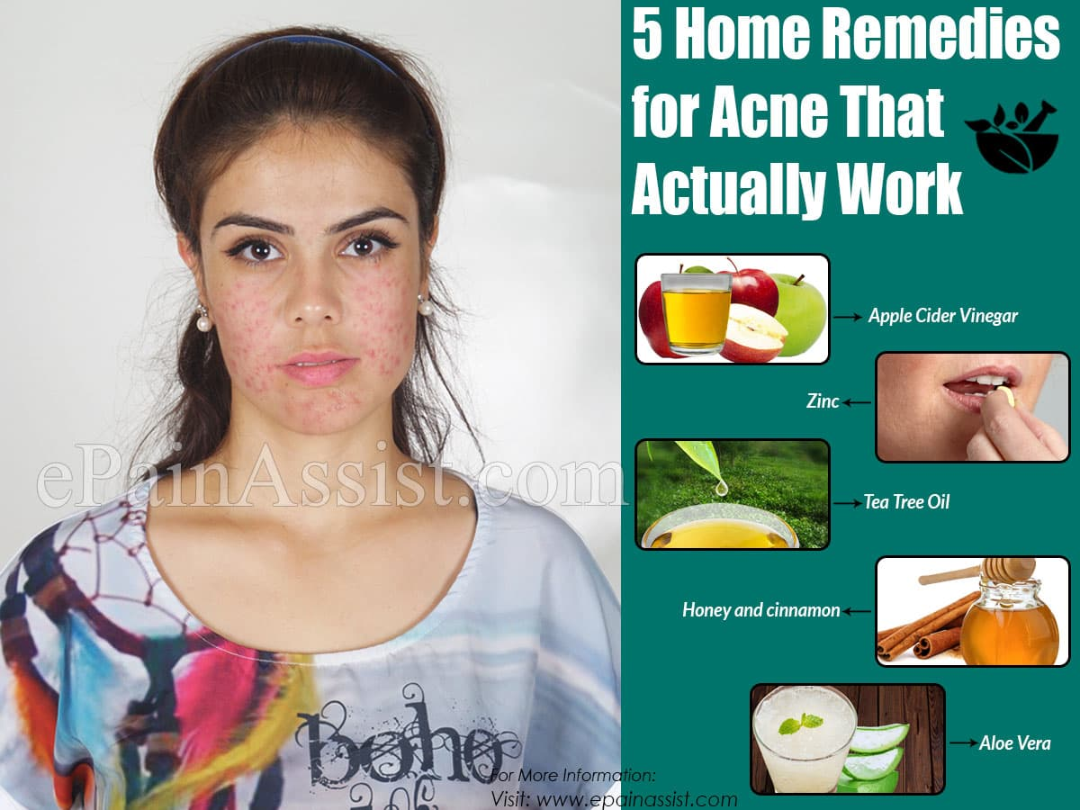 5 Home Remedies for Acne That Actually Work