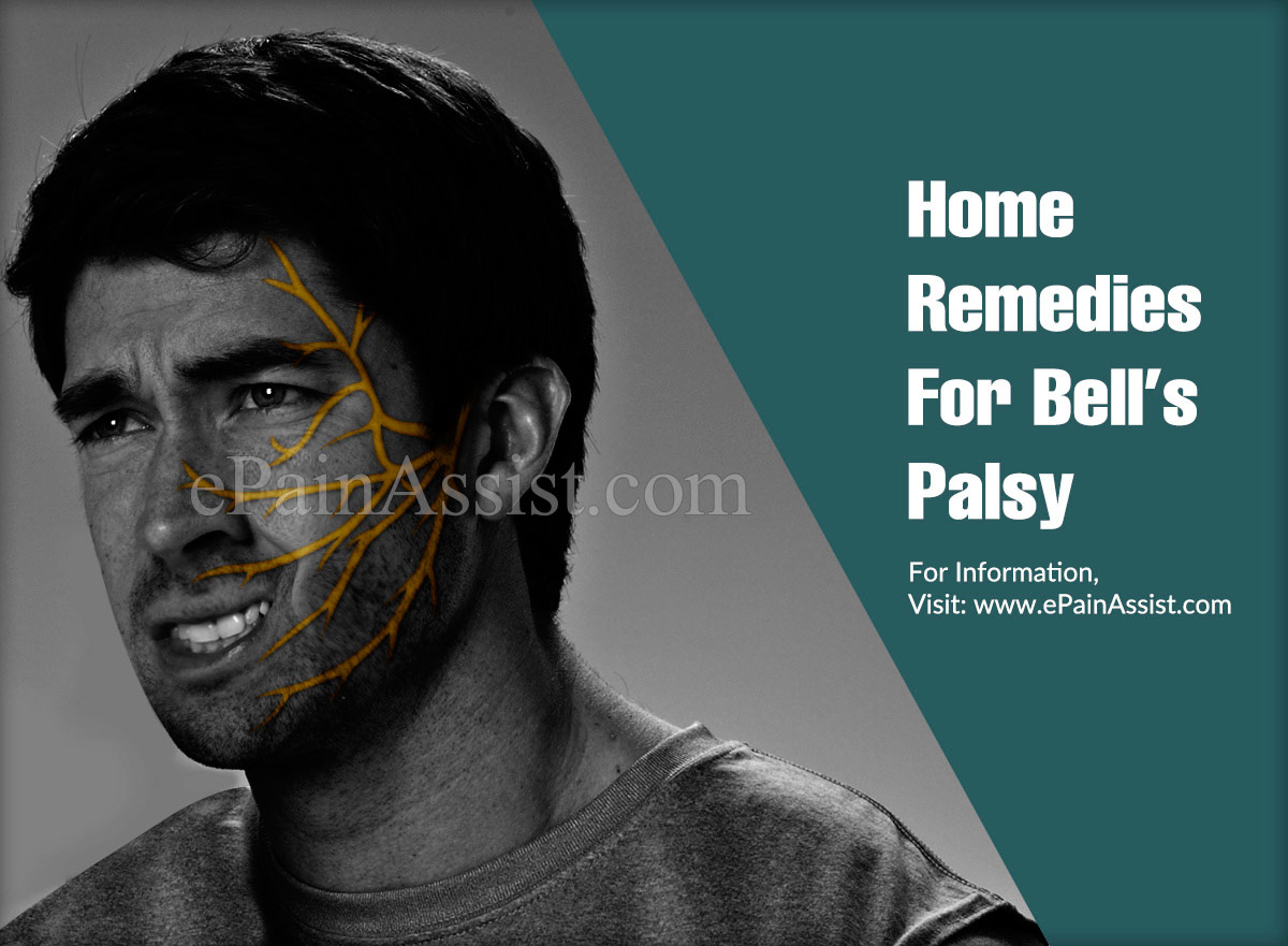Home Remedies For Bell's Palsy