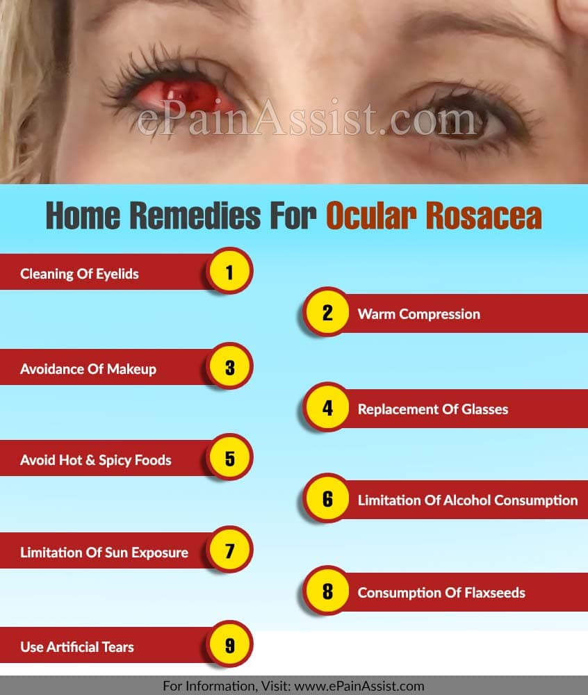 Home Remedies For Ocular Rosacea