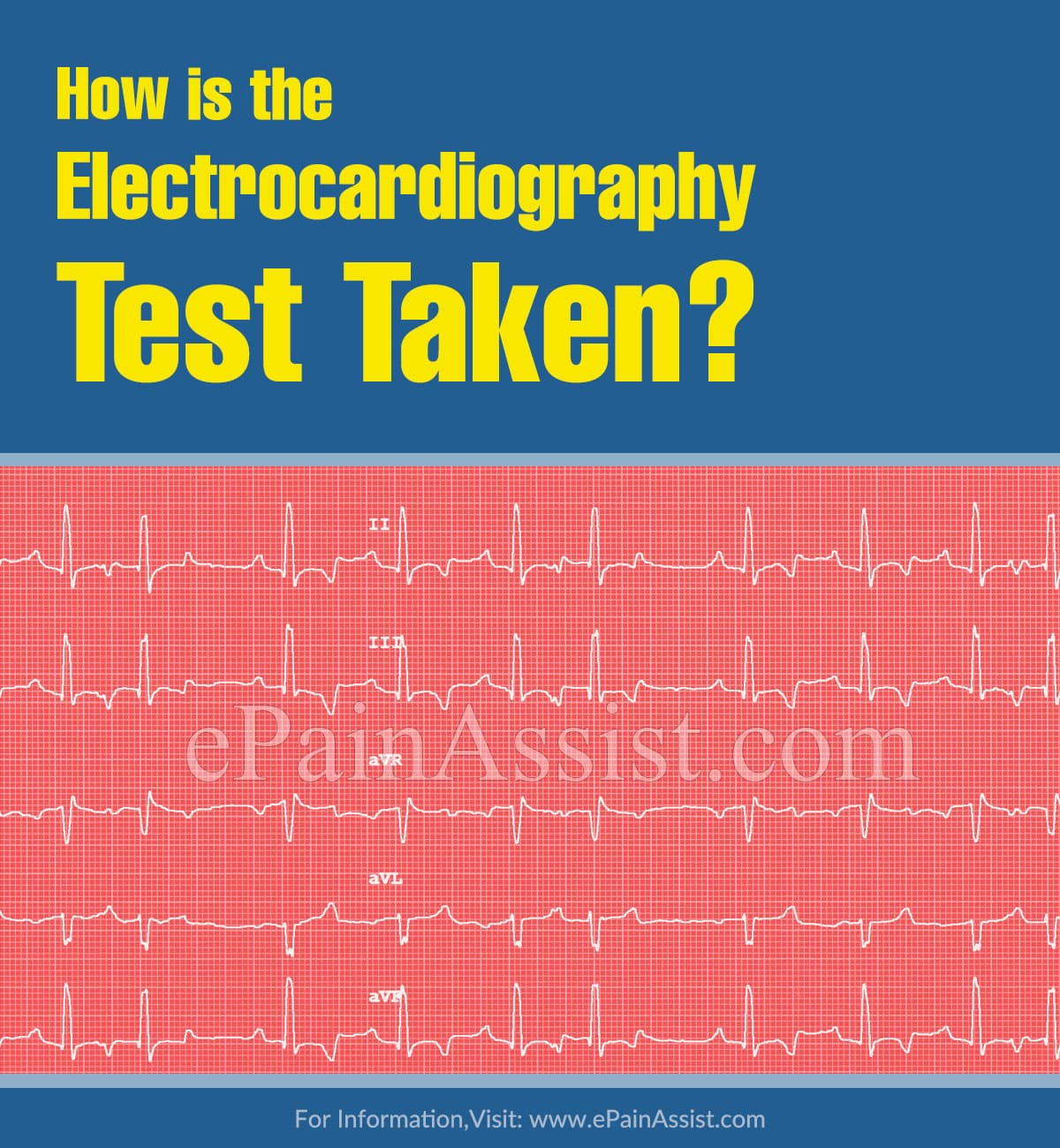How is the Electrocardiography Test Taken?
