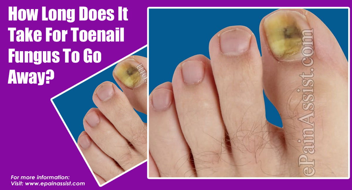 How Long Does It Take For Toenail Fungus To Go Away?