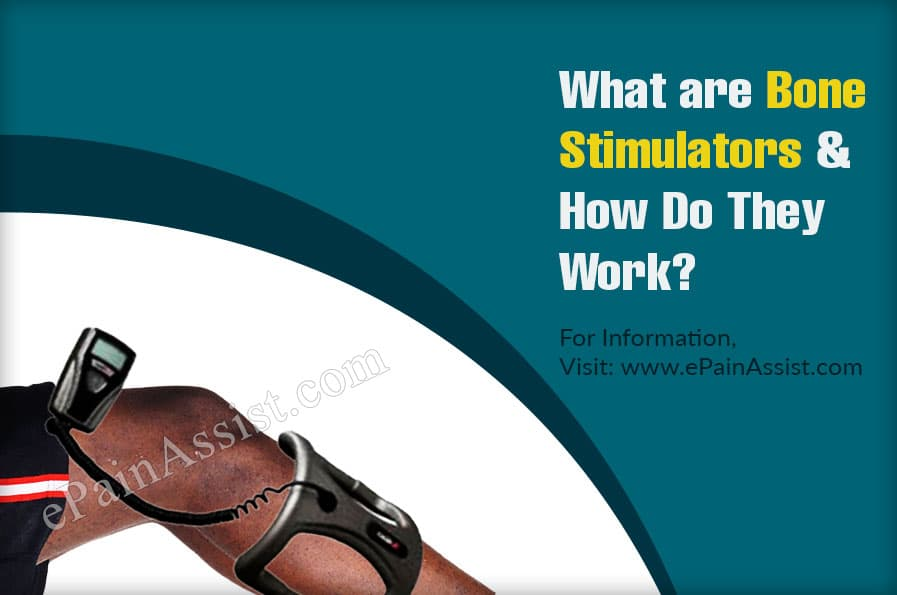 What are Bone Stimulators and How Do They Work?