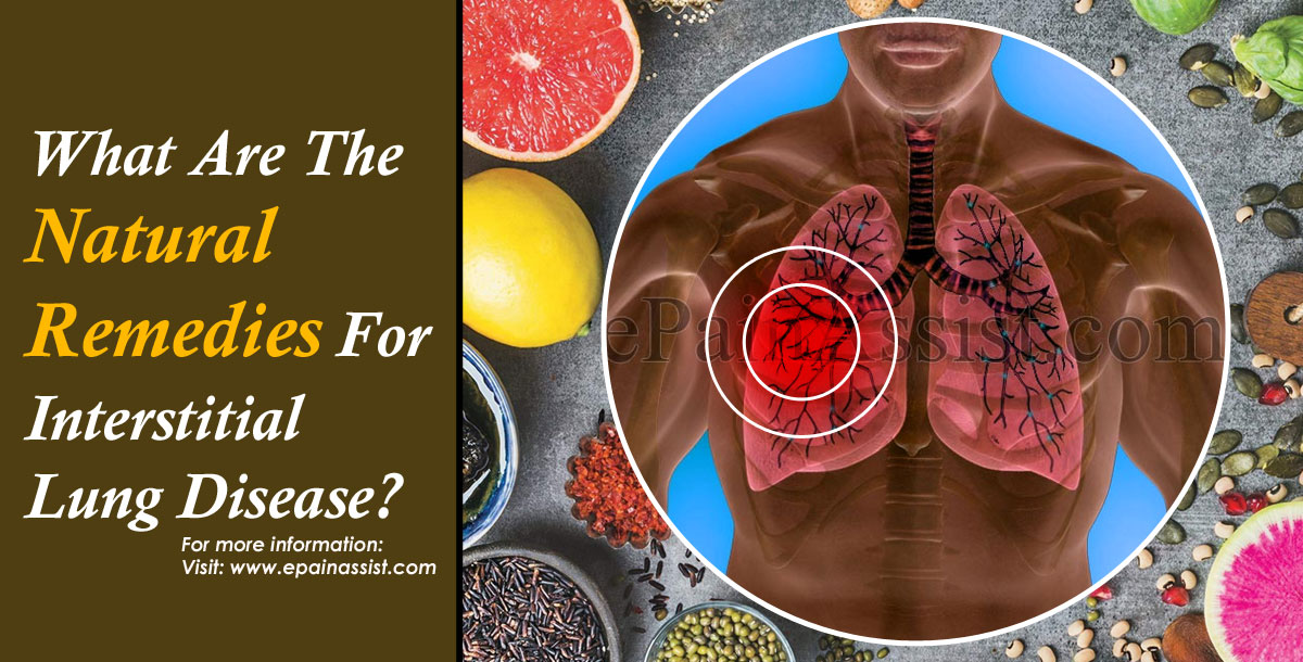 What Are The Natural Remedies For Interstitial Lung Disease?