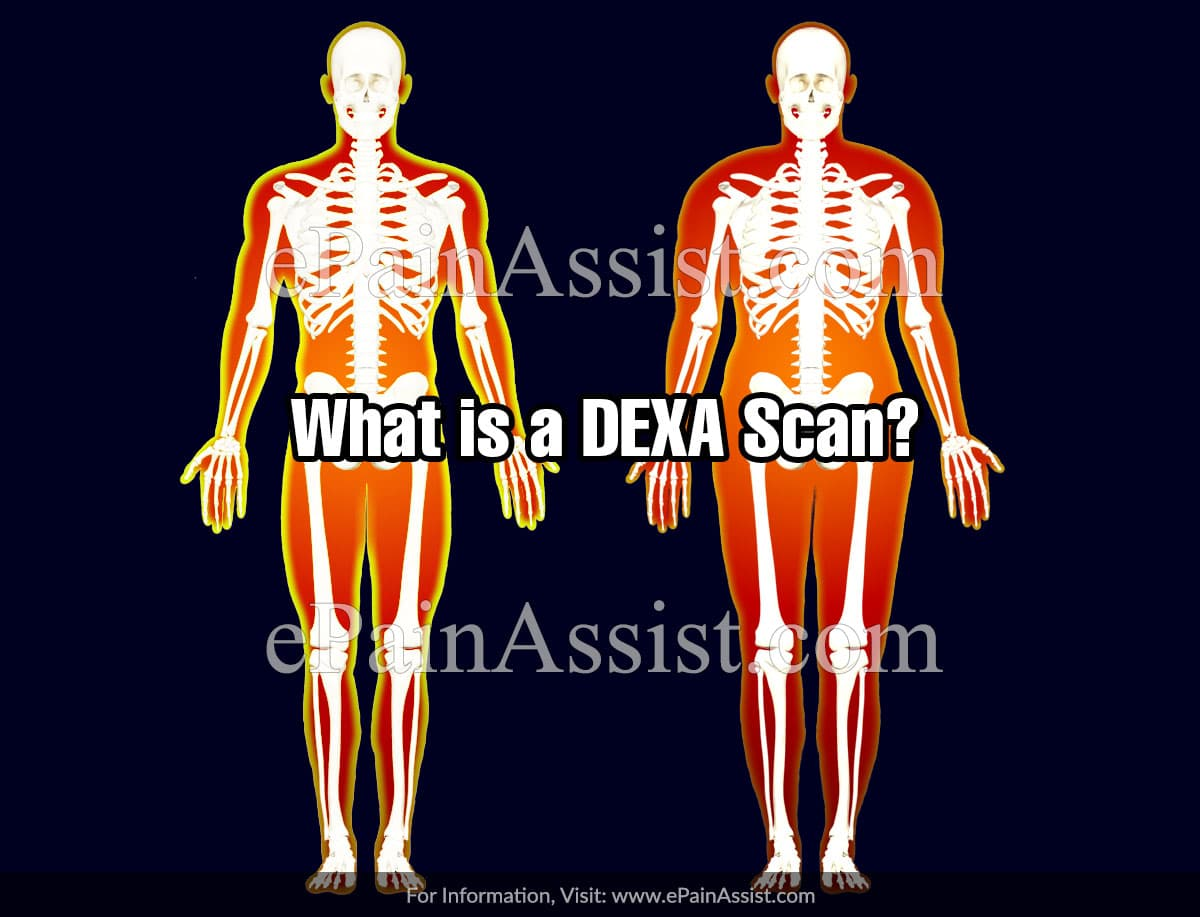 What is a DEXA Scan?