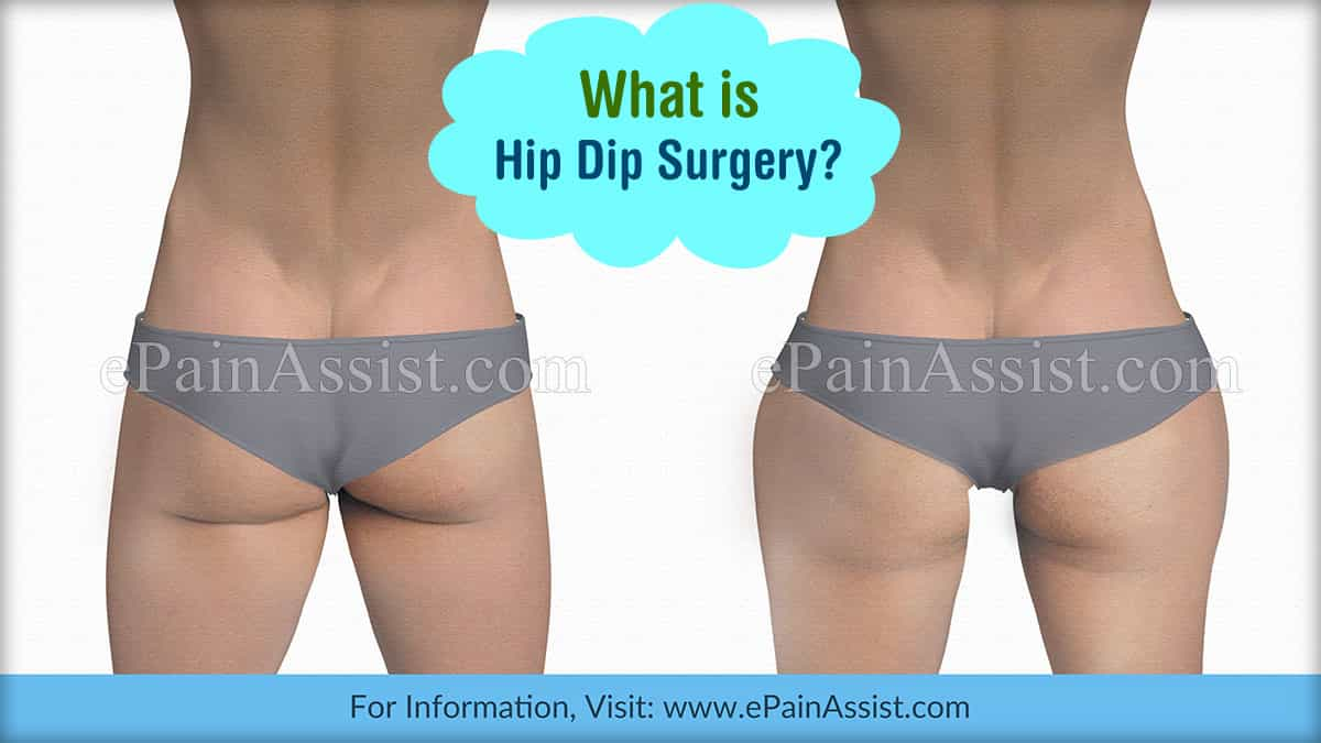 What Is Hip Dip Surgery?