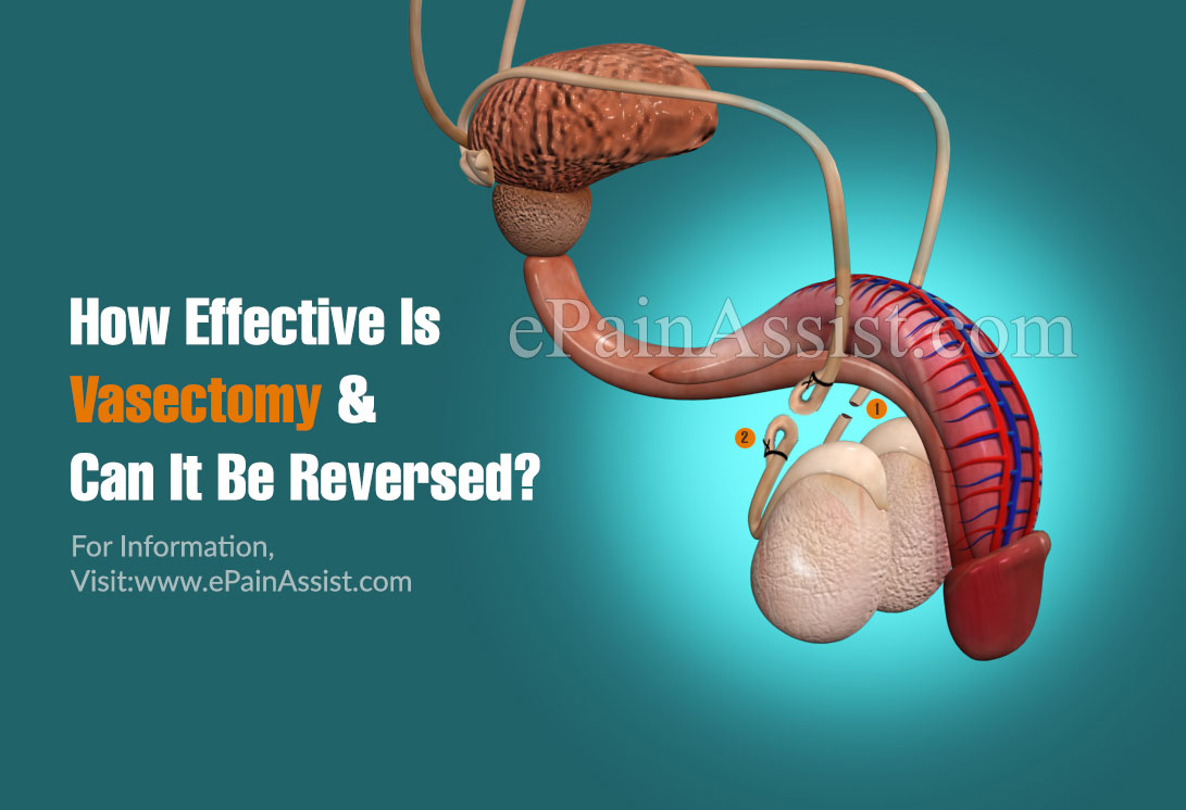 How Effective Is Vasectomy & Can It Be Reversed?