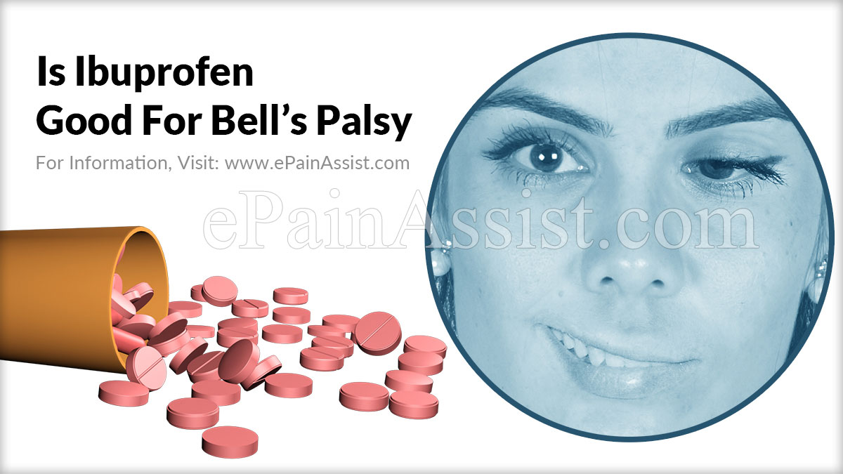 Is Ibuprofen Good For Bell's Palsy?