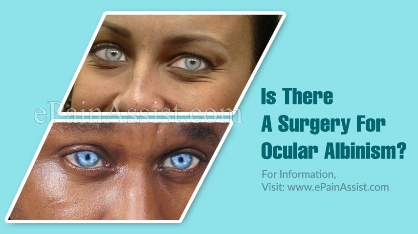 Is There A Surgery For Ocular Albinism?