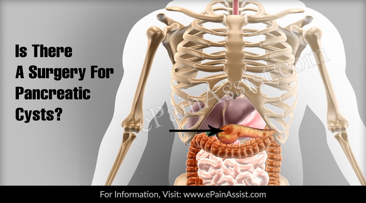 Is There A Surgery For Pancreatic Cysts?