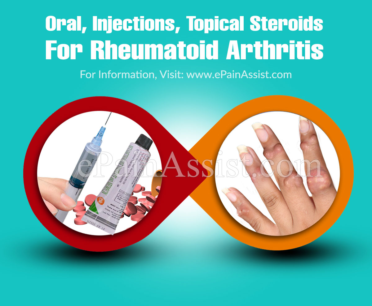 Oral, Injections, Topical Steroids For Rheumatoid Arthritis