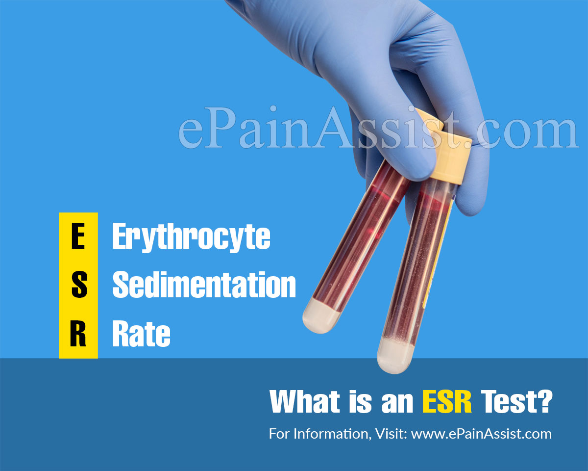 Why is ESR Test Done and Which Conditions Does ESR Test Help Diagnose?