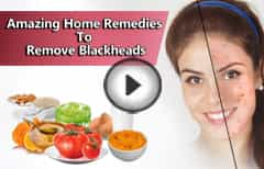 Amazing Home Remedies To Remove Blackheads