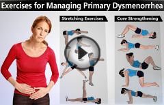 Effective Exercises for Managing Primary Dysmenorrhea