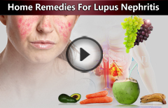 5 Home Remedies for Lupus Nephritis