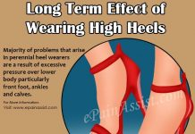 Long Term Effects of Wearing High Heels & How to Mitigate the Harmful Effects of High Heels