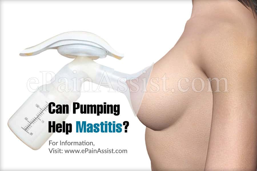Can Pumping Help Mastitis?