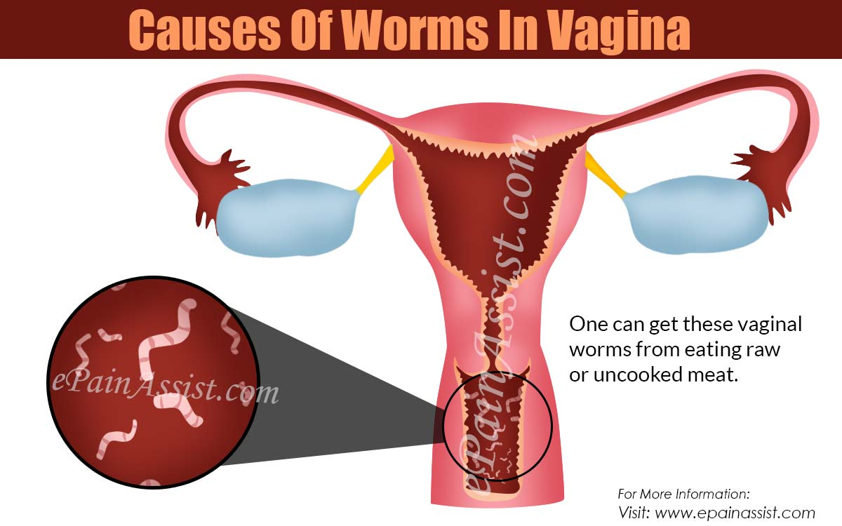 Causes Of Worms In Vagina