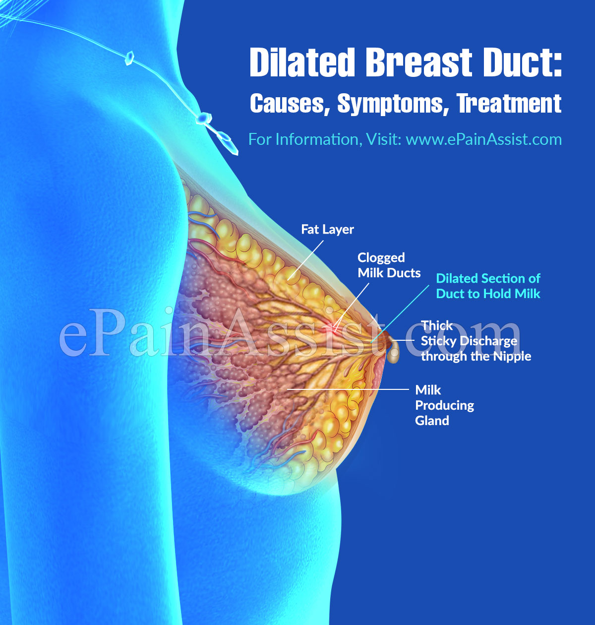 Dilated Breast Duct: It's Causes, Symptoms, Treatment