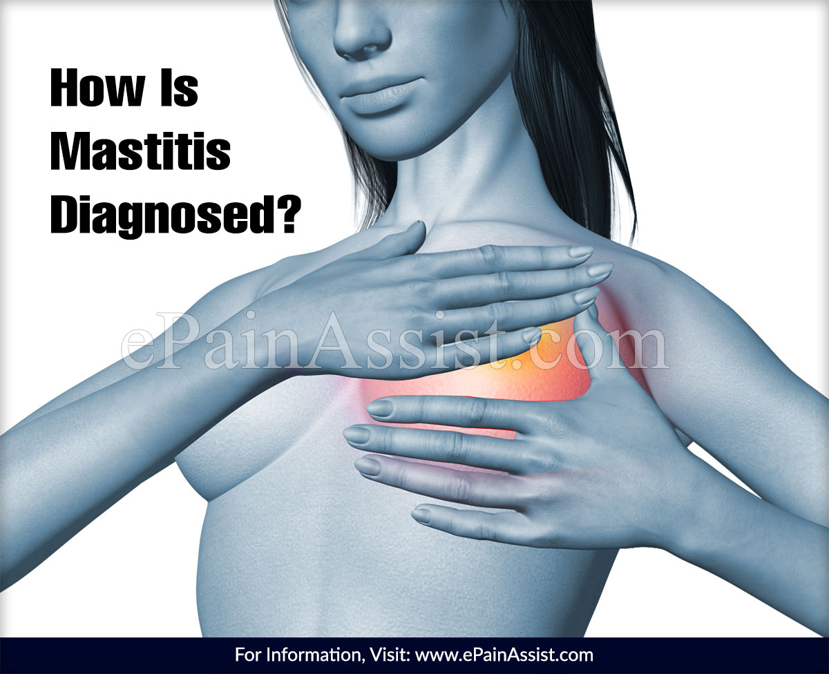 How Is Mastitis Diagnosed?