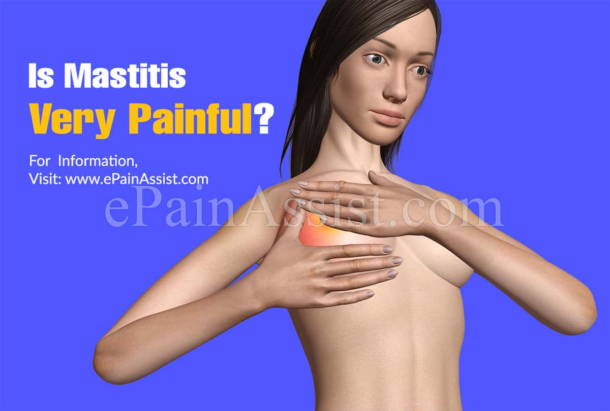 Is Mastitis Very Painful?