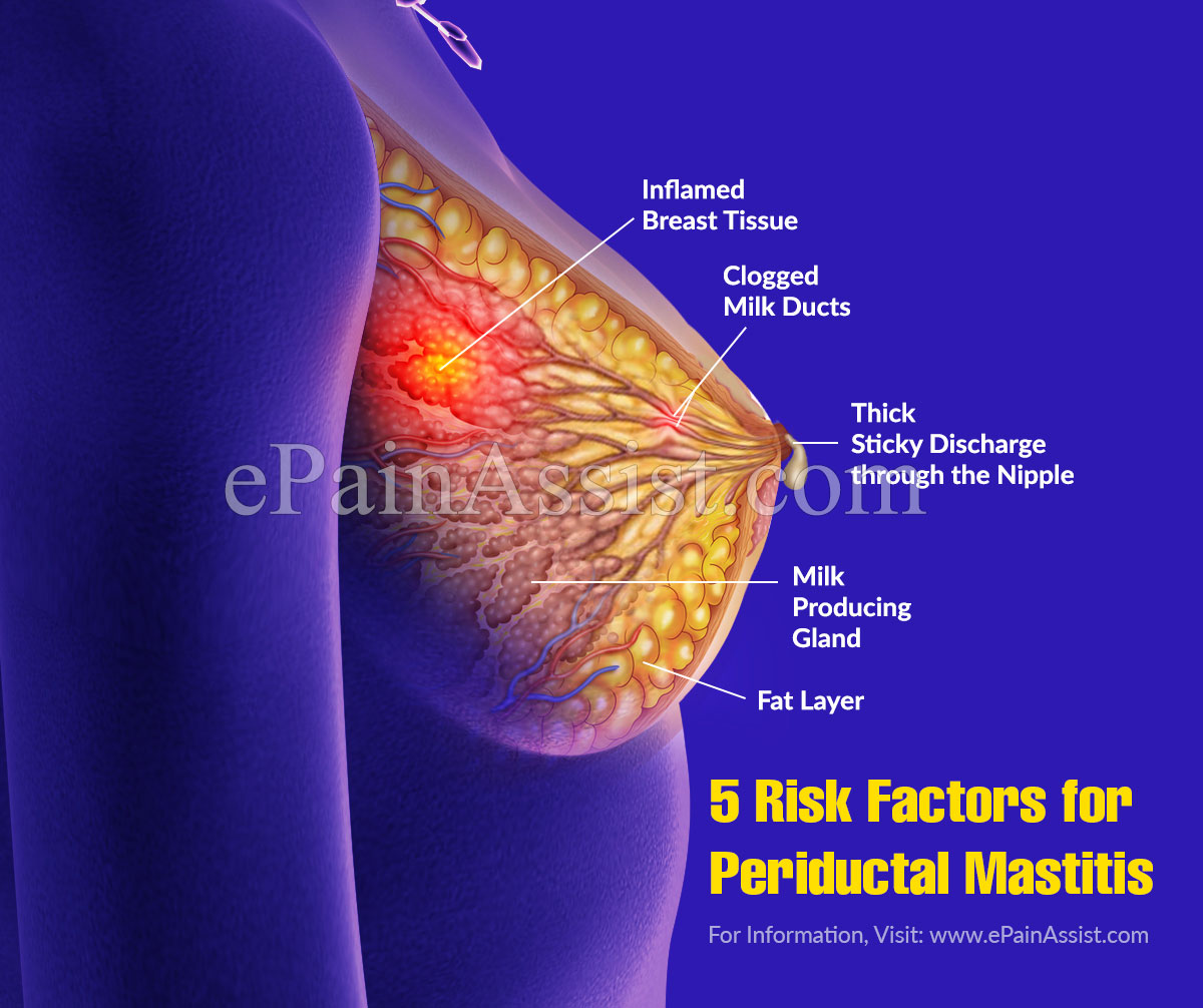 5 Risk Factors for Periductal Mastitis