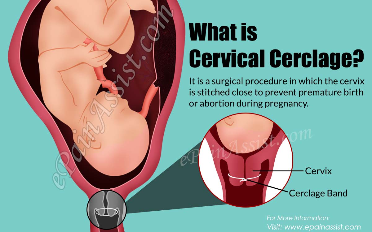 What is Cervical Cerclage?