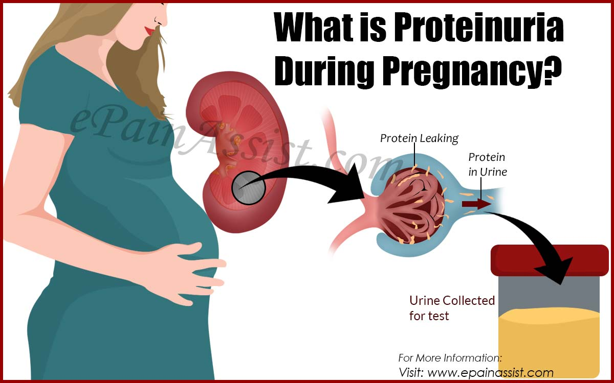 What is Proteinuria During Pregnancy?